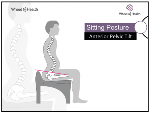 1 bad spinal wheelchair posture