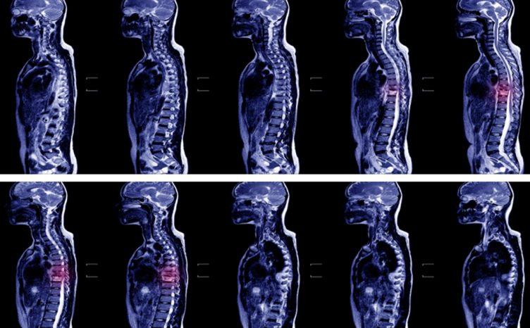 Spinal abscess MRI scan