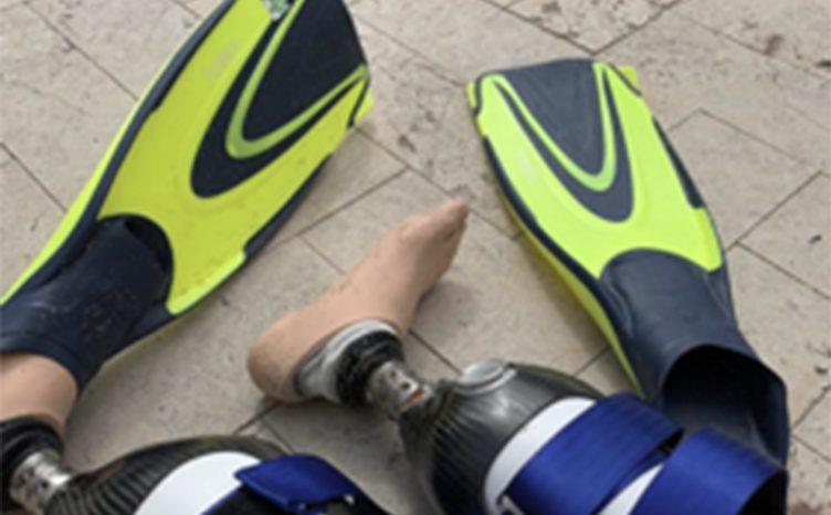 Shaun Whiter prosthetic legs